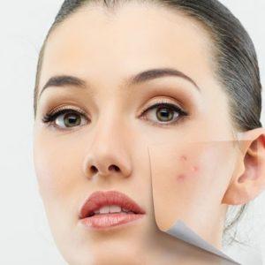 خرید کرم ضد چروک و جوان کننده - محصولات آرایشی و بهداشتی گیاهی -محصولات آرایشی طبیعی-نمایندگی لاکورت-kerem-zede -josh-giyahi-tabiei2-lacvert-www.20to20.ir